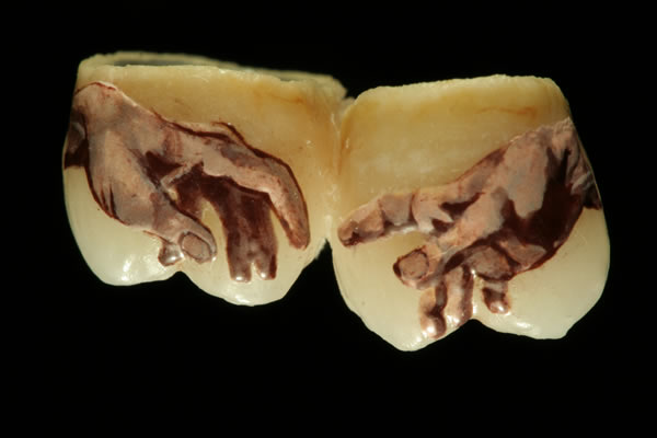 Un art dentaire assez bizarre